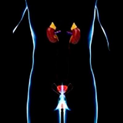 Bienestar urinario y menopausia