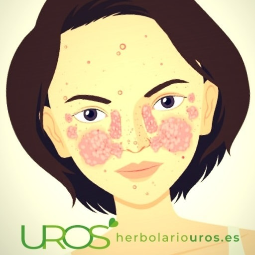 Lupus y los remedios naturalespara los síntomas en tu piel Lupus - ¿Qué es, sus síntomas y cómo se puede mejorar? Lupus - contagio, causas, tratamiento, tipos y causas de esta enfermedad