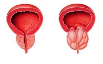 La próstata