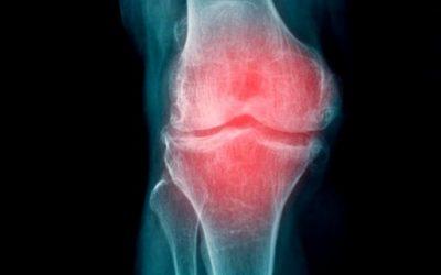 Artrosis de la rodilla: tratamiento, ejercicios y remedios