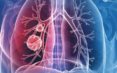 Alergia síntomas: ¿Alergias – cómo combatirlas naturalmente?